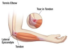 tennis.elbow